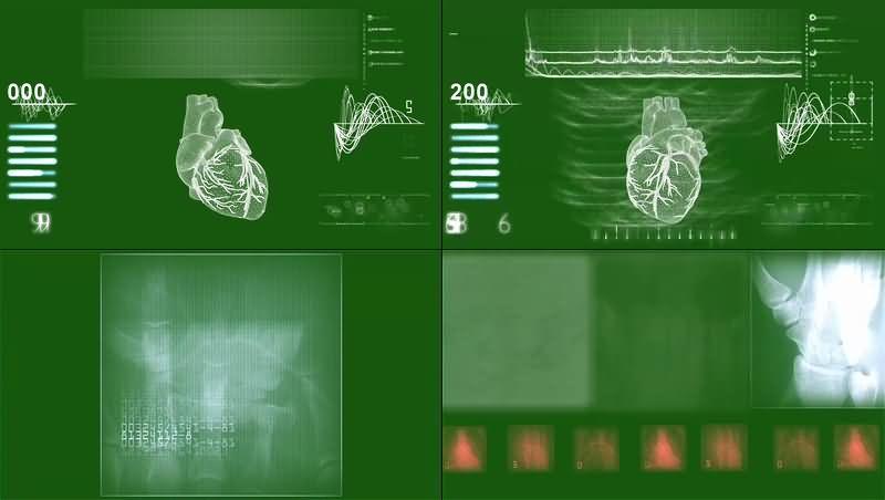 绿幕视频素材X光透视